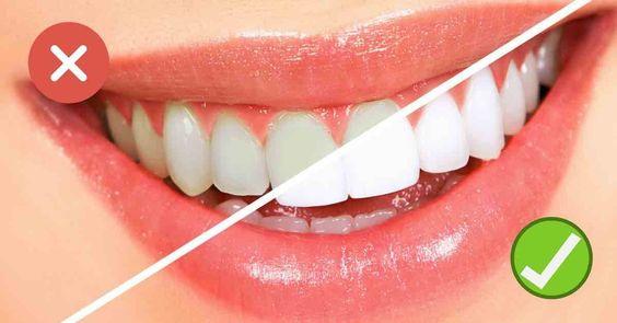 Diskusia na tému: Starostlivosť o zuby